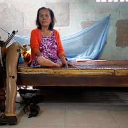 Hoang Thi Hoa, who lost both legs and an arm due to unexploded ordnance (UXO) during the Vietnam War, sits on a bed next to her prosthetics at her house in Quang Tri province, Vietnam March 4, 2020. Picture taken March 4, 2020. REUTERS/Kham
