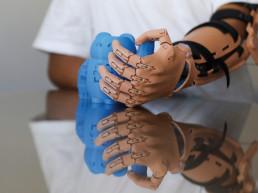 Ayudame3D prosthetics 3D printing spanish inventor